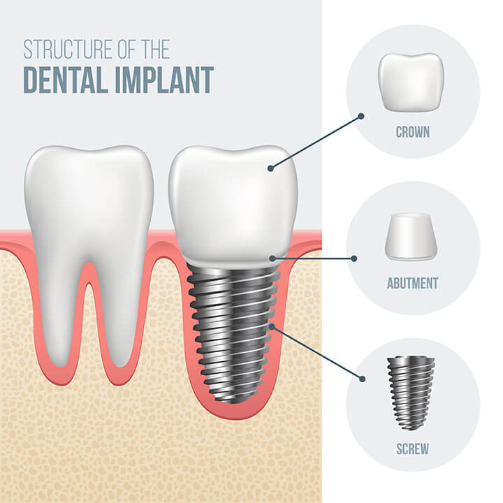What is a dental implant dental restorations in london on different types of dental implant procedures ccuart Image collections